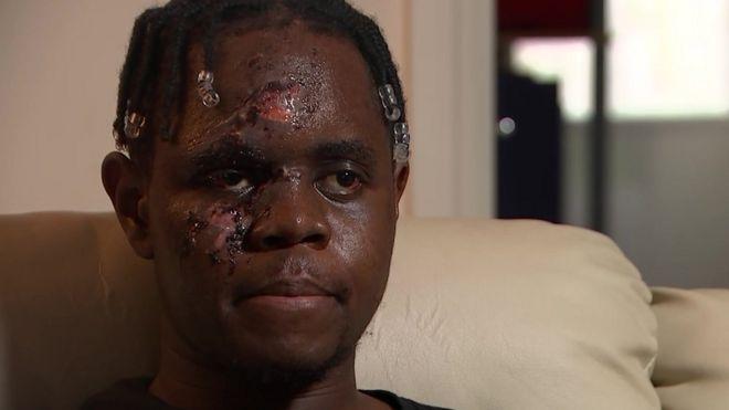 Sağlık çalışanına ırkçı saldırı