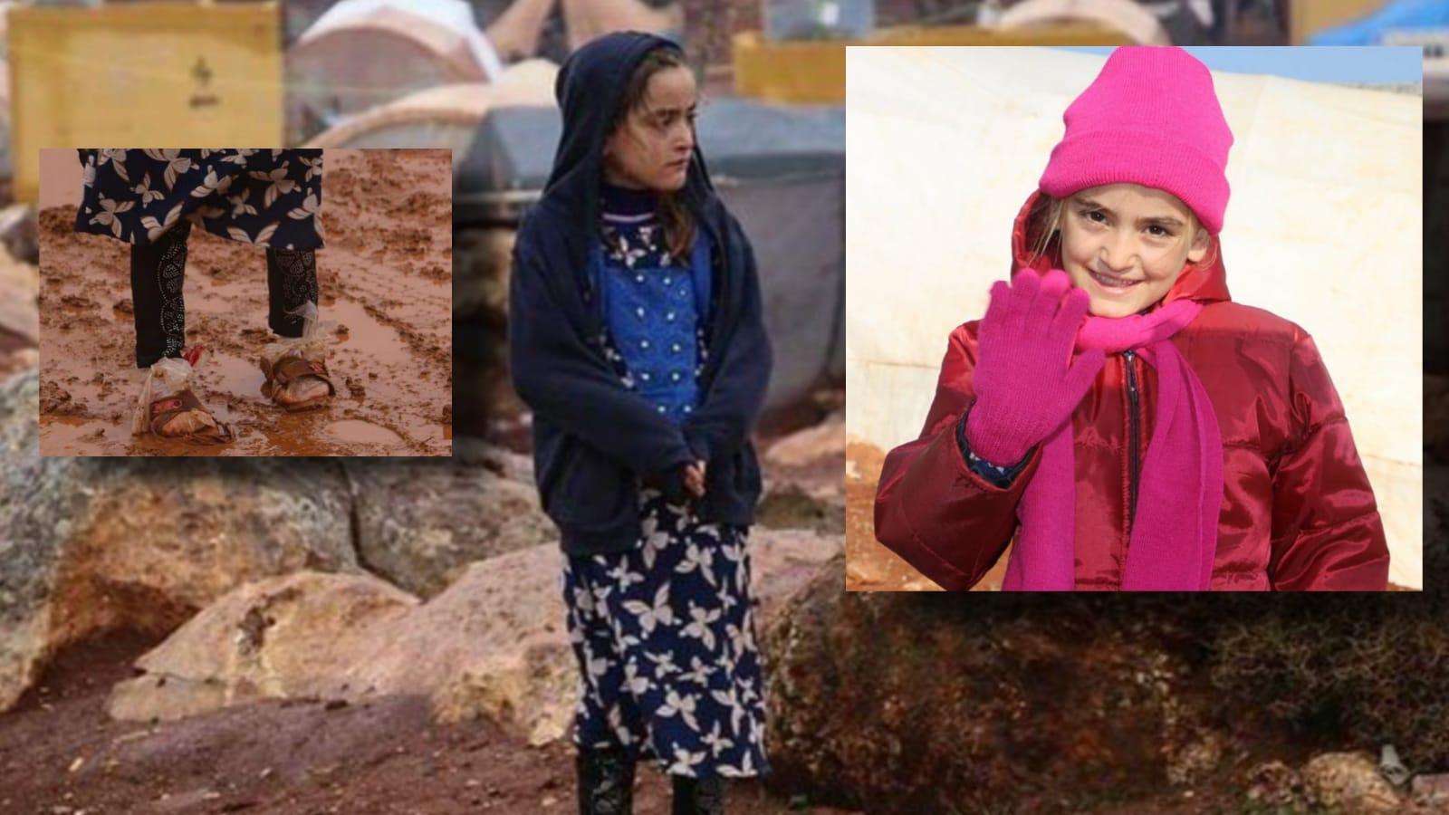 Ayağına naylon sararak gezen İdlibli kıza Hak İnsani Yardım Derneği sahip çıktı (Video Haber)
