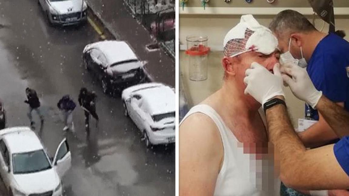 Selçuk Özdağ'a saldıranlar Özdağ'dan şikayetçi oldu, yüzünü kaldırıma çarptı dediler
