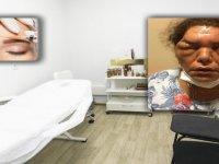 Botoks yaptıran kadın kör olma tehlikesi geçirdi