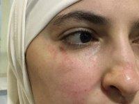 Gaziantep'te Suriyeli kadına ırkçı saldırı