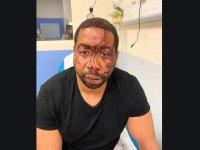 Fransa'da ırkçı polis şiddeti kamerada (video haber)