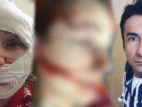 AVM'de karısını dövüp falçata ile yüzünü tanınmaz hale getirdi